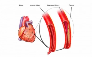 Illustration of heart and blood vessels