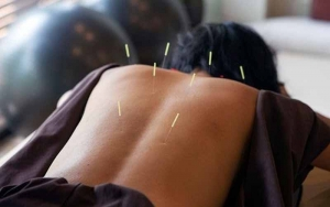 Acupuncture-Needle-on-the-Back