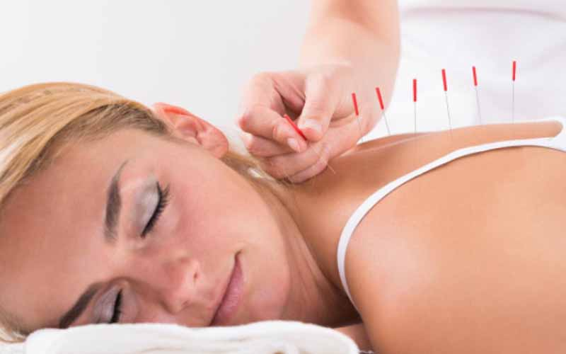 Lady-undergoing-accupuncture