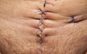 Surgery Scars