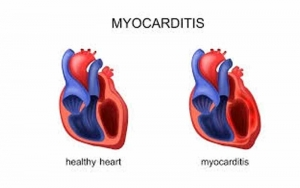 Heart Muscle Inflammation